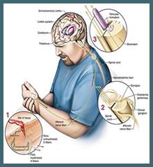 Eliminate Pain Through Hypnosis